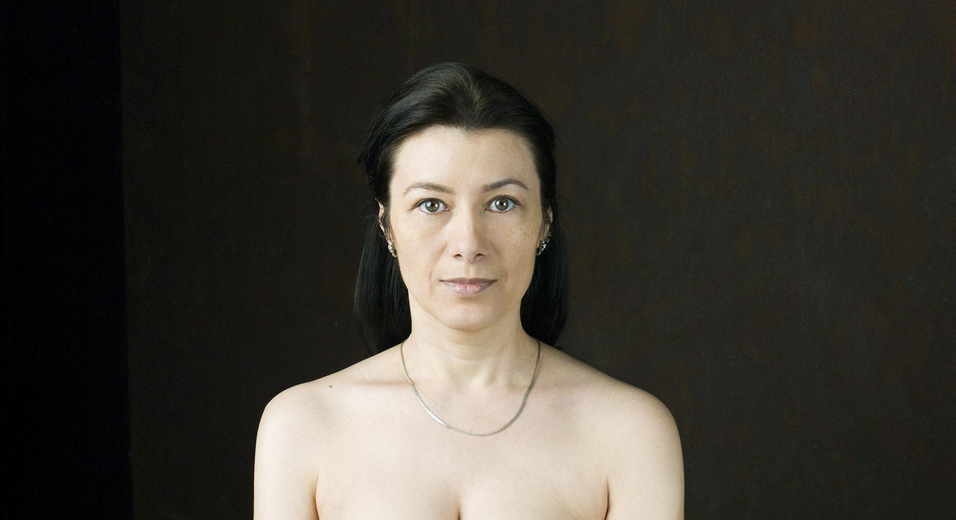 Не прячу взгляд — Блефаропластика — Виталий Жолтиков
