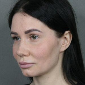 Пьезо ринопластика — до и после — Виталий Жолтиков