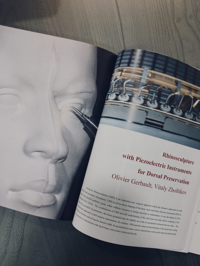Preservation rhinoplasty — third edition — plastic surgeon Vitaly Zholtikov